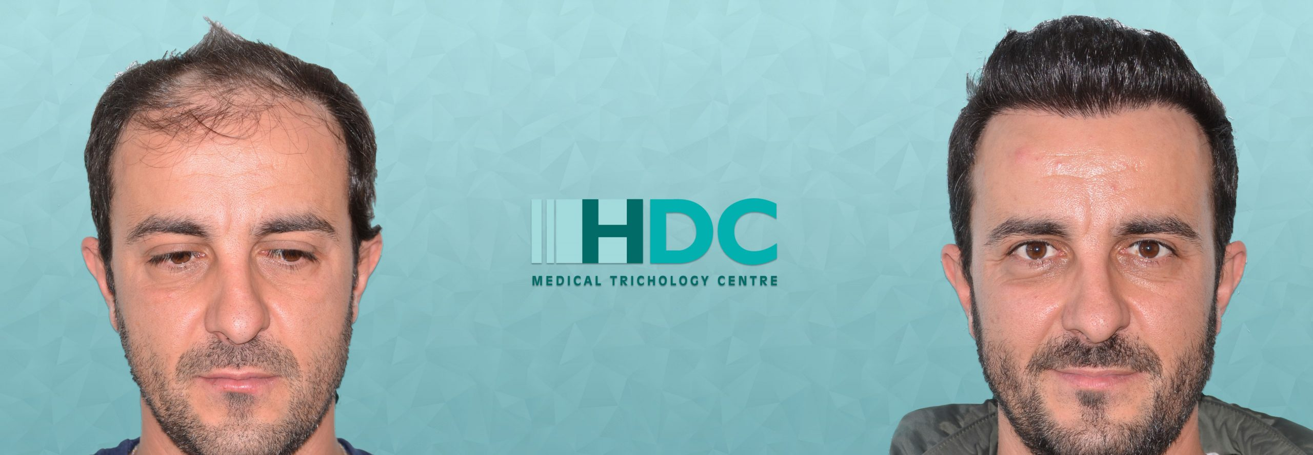 HDC המרכז להשתלות שיער